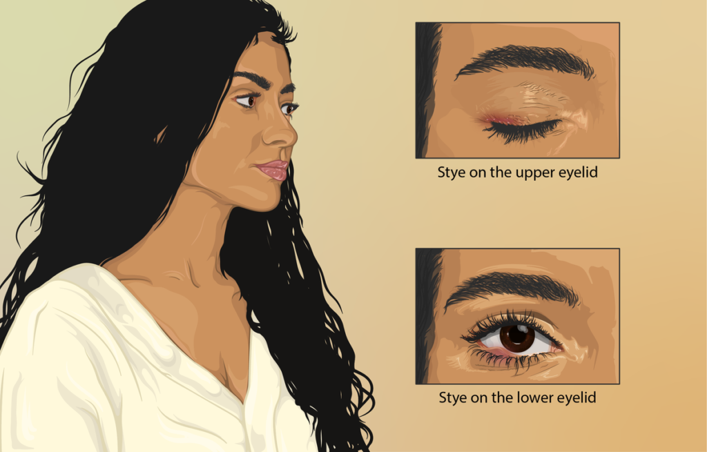 Stye is a terrible bacterial infection.How Long Does a Stye last on your eye?