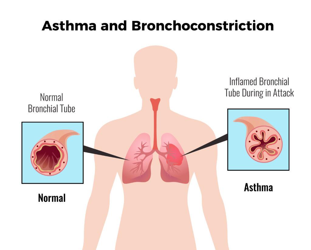 Asthma : 10 Easy Asthma Prevention Measures 1 - Daily Medicos