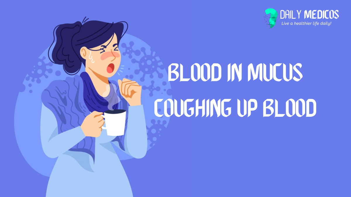 Coughing up blood: What Blood in Mucus shows? 1 - Daily Medicos