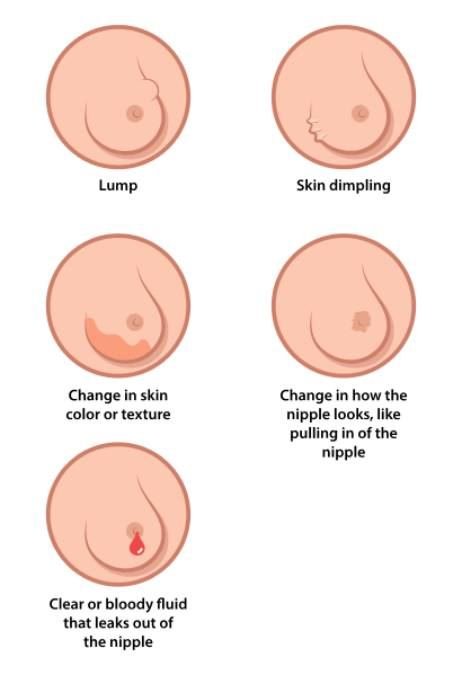 Breast Cancer: types, symptoms, stages and treatment of breast cancer 4 - Daily Medicos