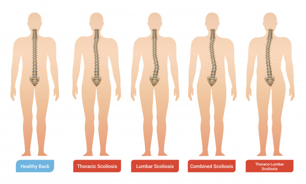 Everything to know about Scoliosis 1 - Daily Medicos
