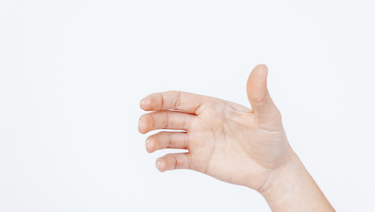 Ape Hand Deformity: It's Diagnosis And Treatment 1 - Daily Medicos