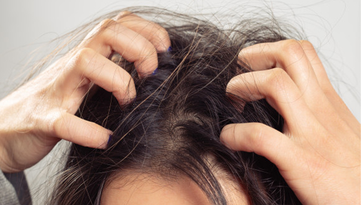 Dandruff... dry, white flakes in head and beard! How to get rid of it? 1 - Daily Medicos