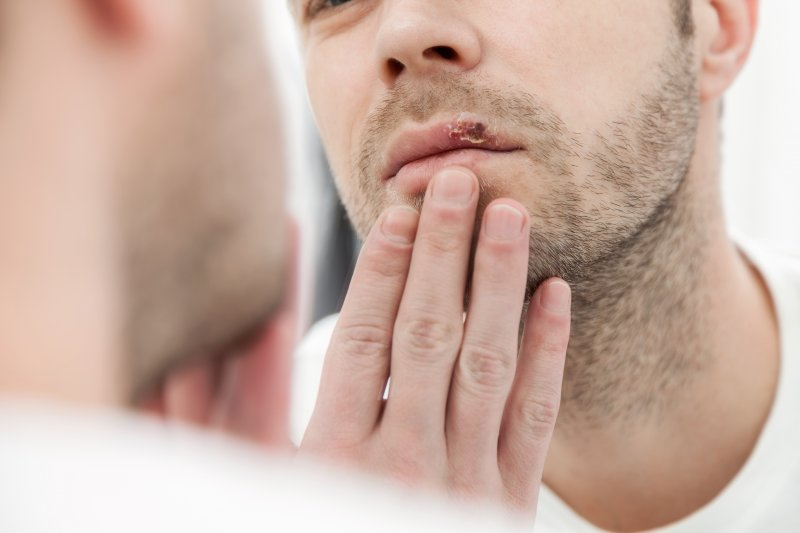 Aphthous Stomatitis: It's Causes, Symptoms And Treatment 2 - Daily Medicos