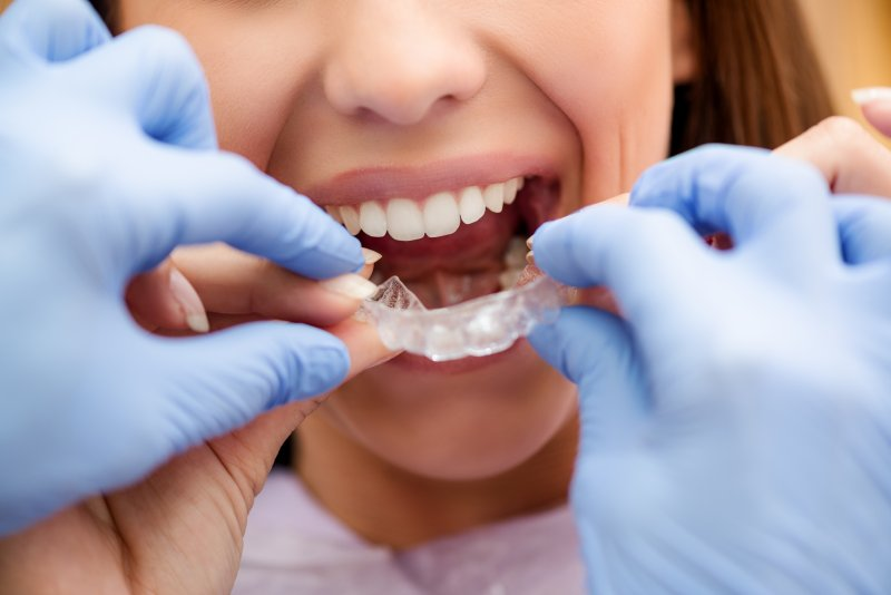 Make Your Smile Beautiful With Esthetic Dentistry 5 - Daily Medicos