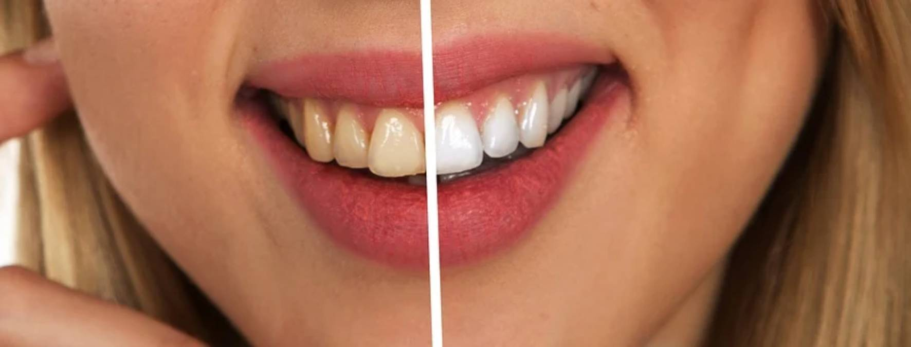Natural teeth whitening procedures: 6 natural ingredients for teeth whitening 1 - Daily Medicos