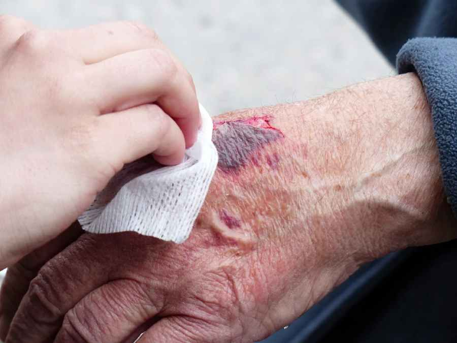 The wound heals actively in the daytime! What are the facts and figures which concluded this phrase? 1 - Daily Medicos