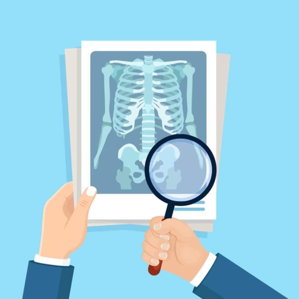FOP or Fibrodysplasia Ossificans Progressiva. Different right? 2 - Daily Medicos