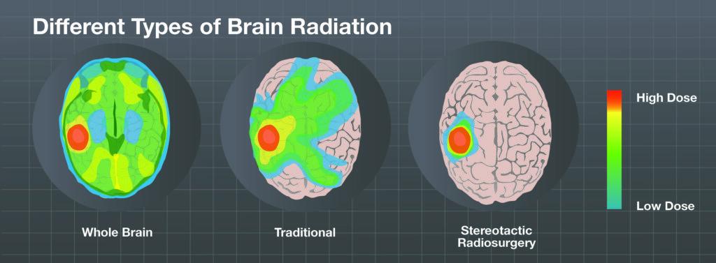 Supratentorial Brain Tumors: Symptoms, Diagnosis, Imaging Test, Risk Factors, and Treatment 3 - Daily Medicos