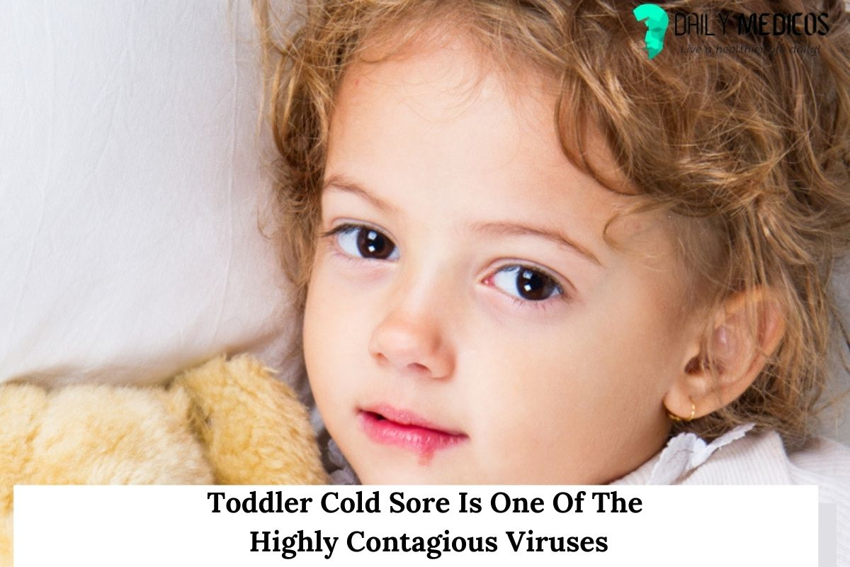Toddler Cold Sore Is One Of The Highly Contagious Viruses 1 - Daily Medicos