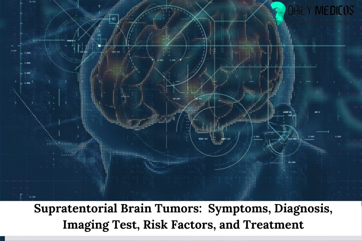 Supratentorial Brain Tumors: Symptoms, Diagnosis, Imaging Test, Risk Factors, and Treatment 16 - Daily Medicos