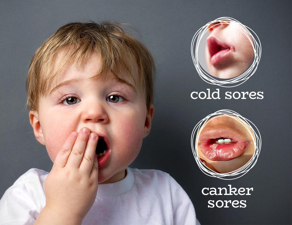 toddler cold sore