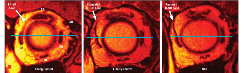 Sagging Eye Syndrome: Causes, Symptoms, Diagnosis & Treatment 4 - Daily Medicos