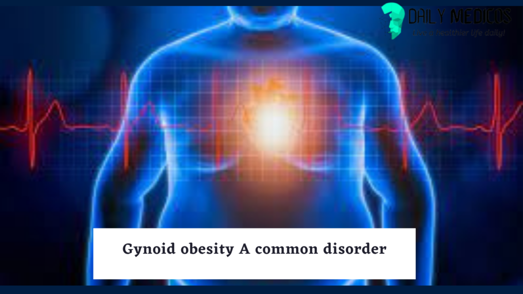 Gynoid vs Android Obesity: causes, health risks, and treatment. 3 - Daily Medicos