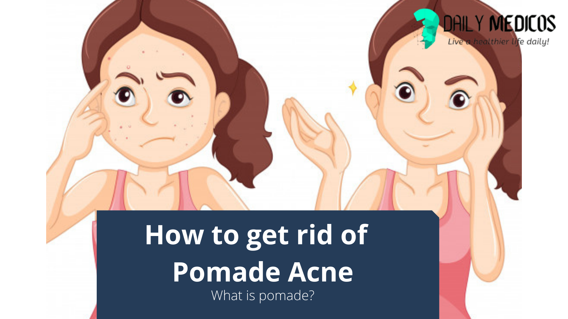 How to get rid of Pomade Acne [Detaied Guide] 13 - Daily Medicos