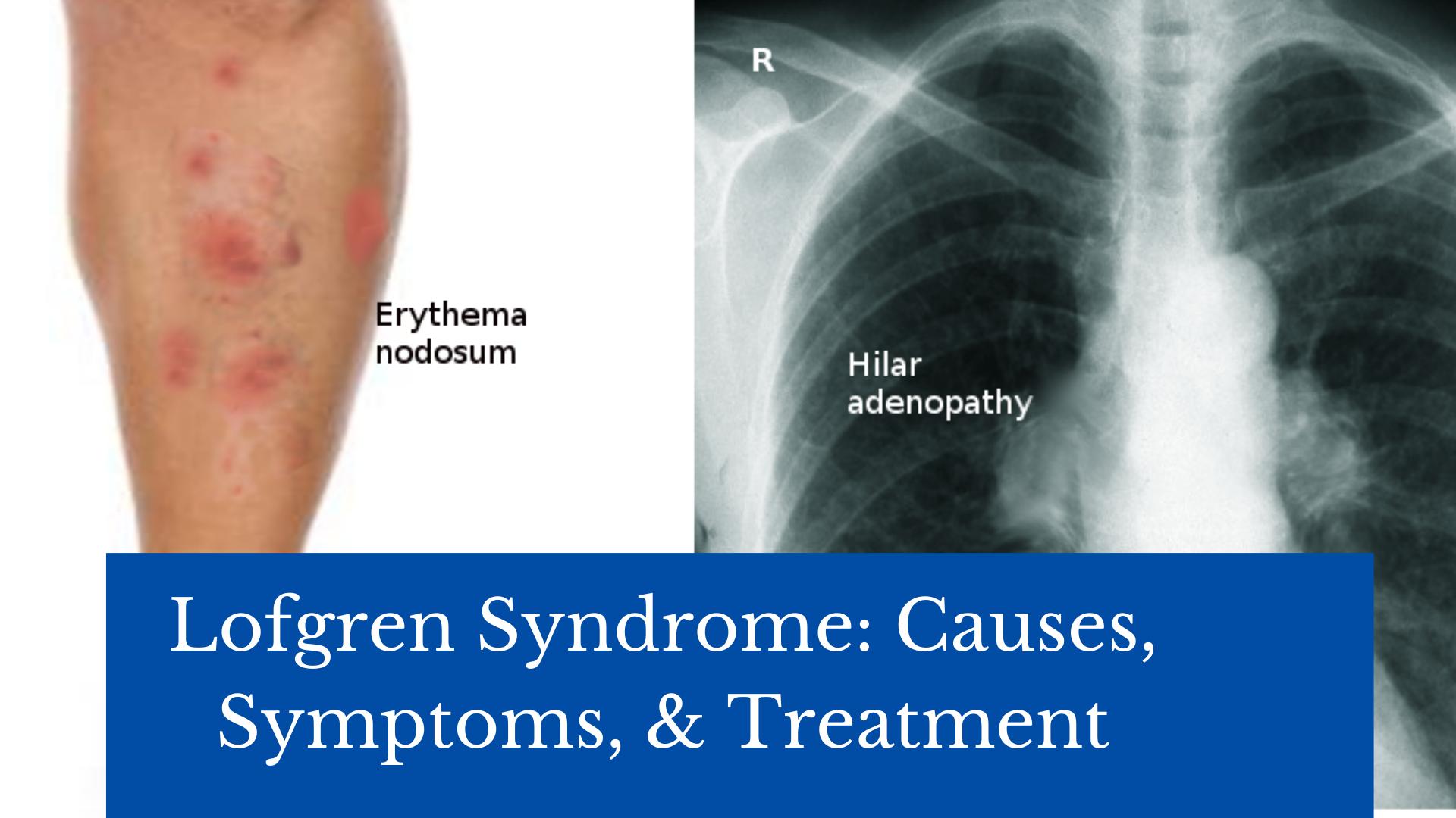 Lofgren Syndrome: Causes, Symptoms, & Treatment 21 - Daily Medicos
