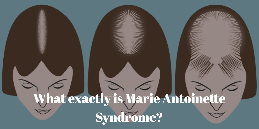 Marie Antoinette Syndrome: What Is The Truth? 3 - Daily Medicos