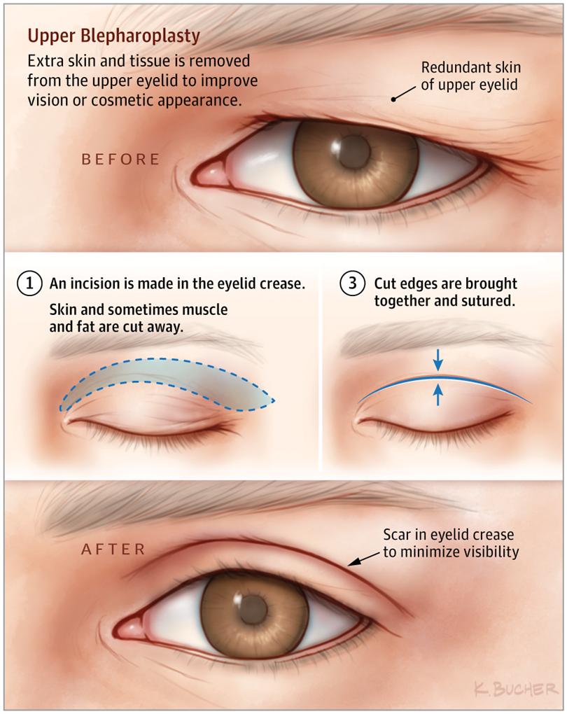 Sagging Eye Syndrome: Causes, Symptoms, Diagnosis & Treatment 6 - Daily Medicos