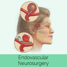 Scope Of Career In Endovascular Surgical Neuroradiology In Pakistan 2 - Daily Medicos