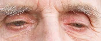 Sagging Eye Syndrome: Causes, Symptoms, Diagnosis & Treatment 3 - Daily Medicos