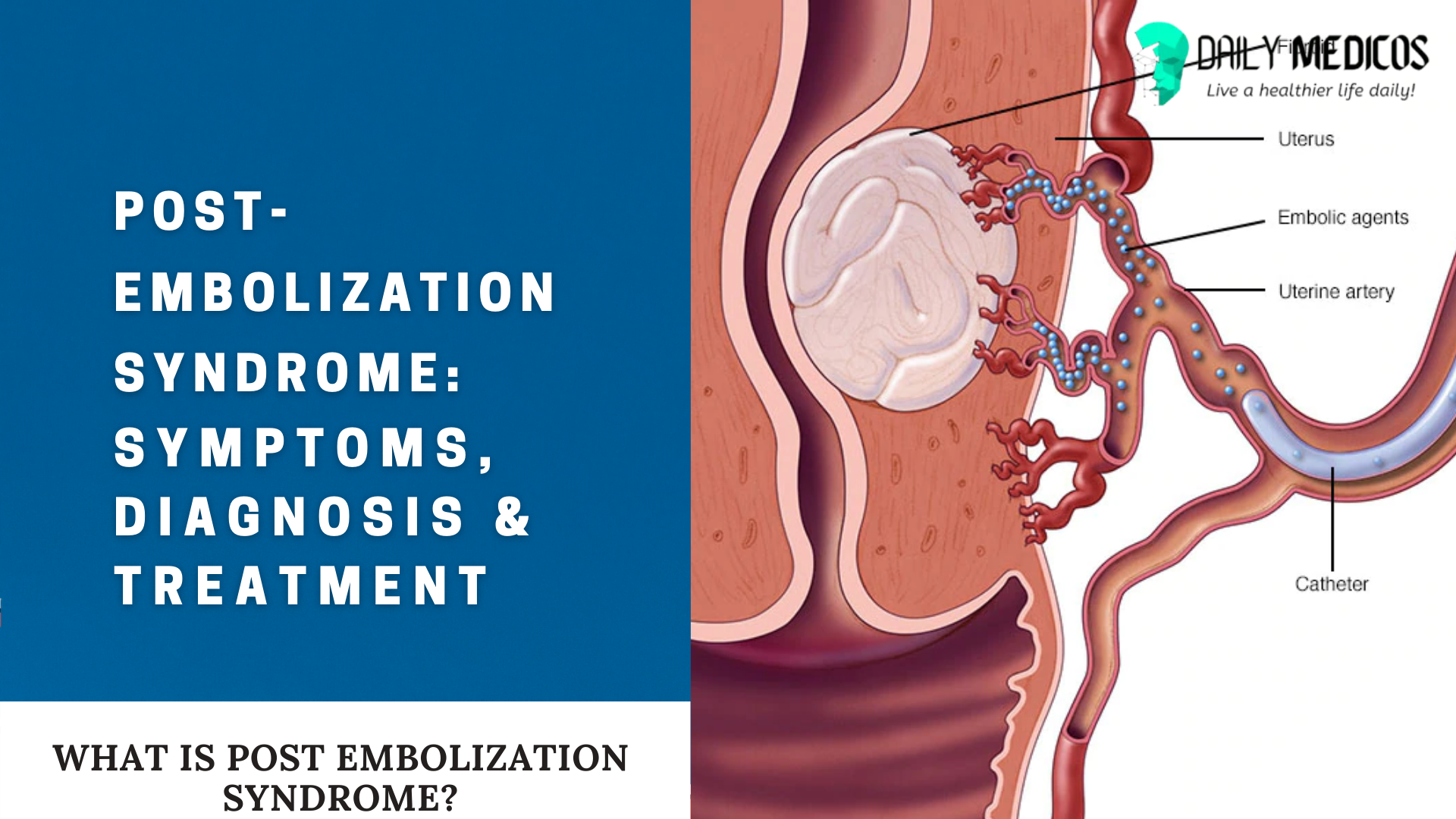 Post embolization Syndrome: All You Need to Know About it 1 - Daily Medicos