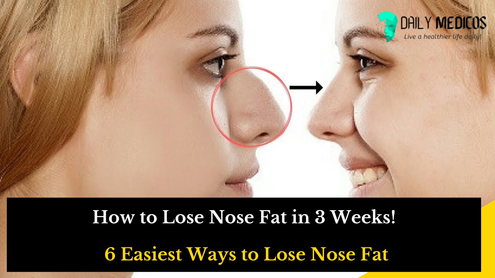 How To Lose Nose Fat In 10 Weeks! 10 Easiest Ways To Lose Nose Fat