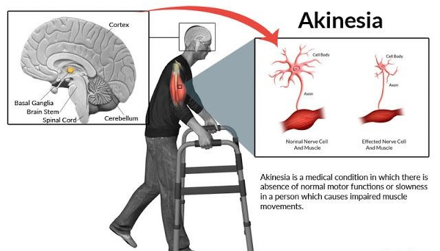 Akinesia: Everything You Need to Know About Akinesia [Causes, Symptoms, & Treatment] 2 - Daily Medicos