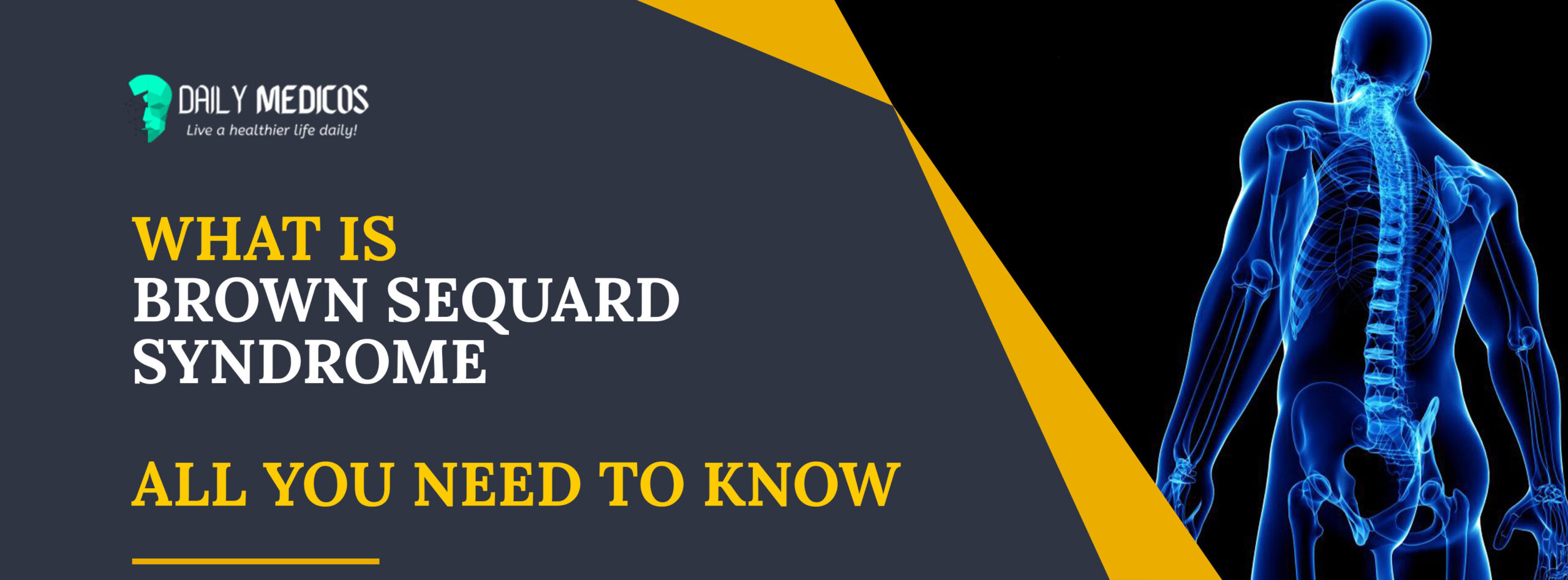 Brown Sequard Syndrome: All You Need To Know [Learn Through A Video] 1 - Daily Medicos