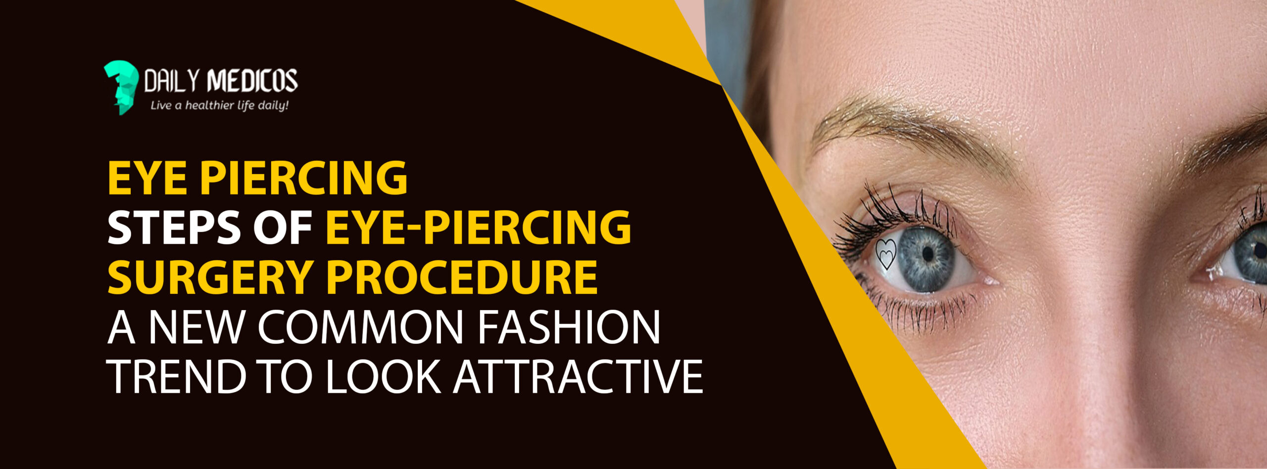 Eye Piercing: Steps of Eye-piercing Surgery Procedure [A new common fashion trend to look attractive] 19 - Daily Medicos