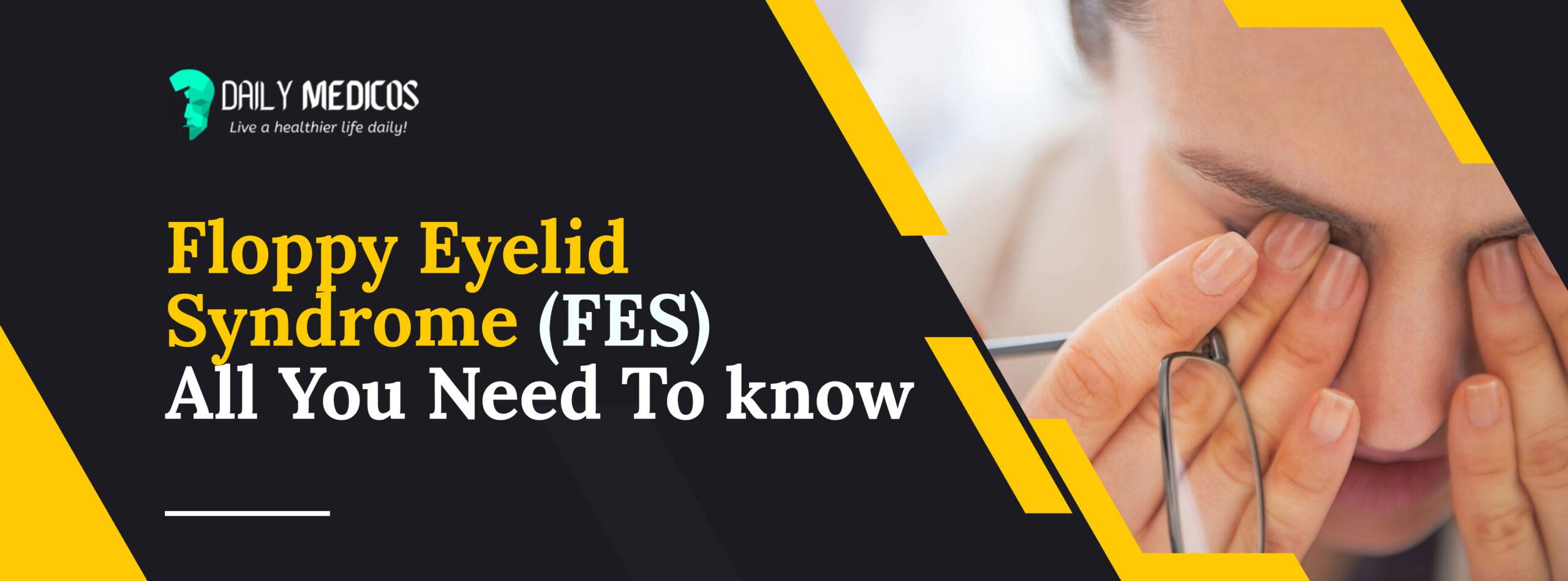 Floppy Eyelid Syndrome (FES): Causes, Symptoms, & Treatment 1 - Daily Medicos