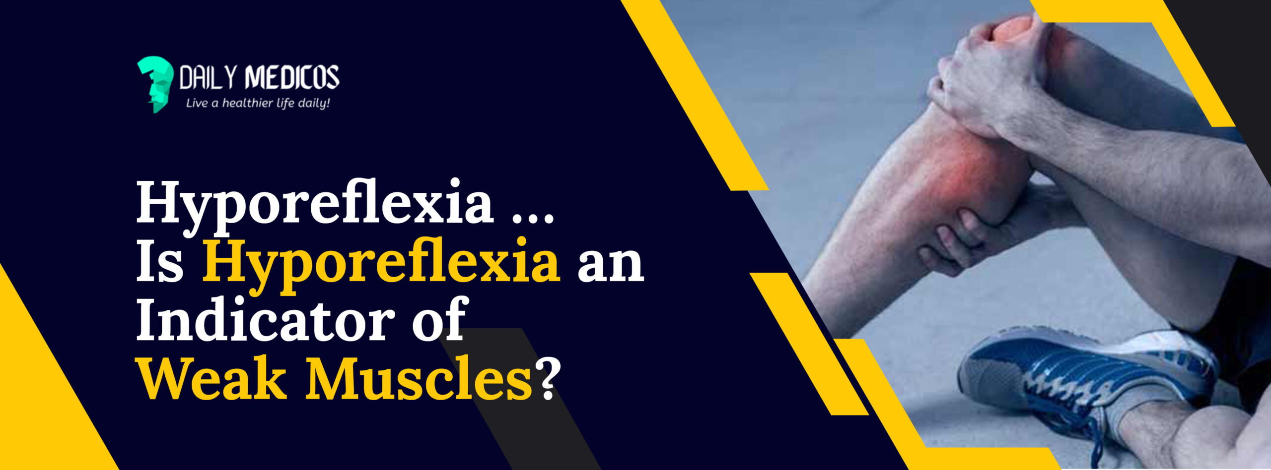 Hyporeflexia ...Is Hyporeflexia an Indicator of Weak Muscles? 11 - Daily Medicos