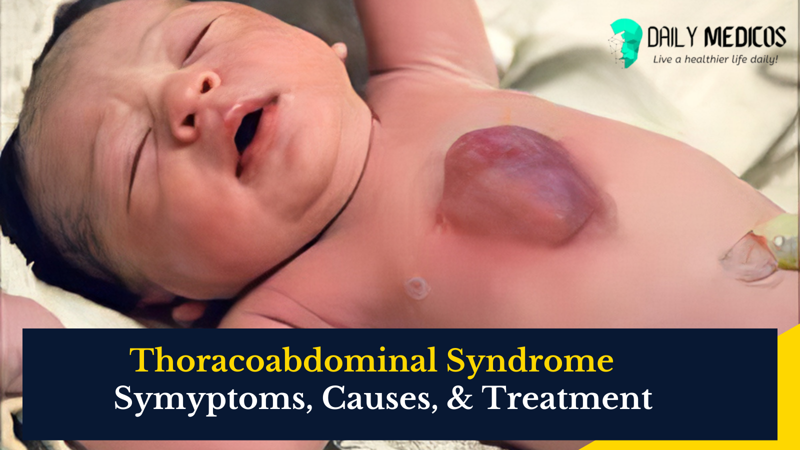 Thoracoabdominal Syndrome: All You Need to Know [Types, Diagnosis & Treatment] 1 - Daily Medicos
