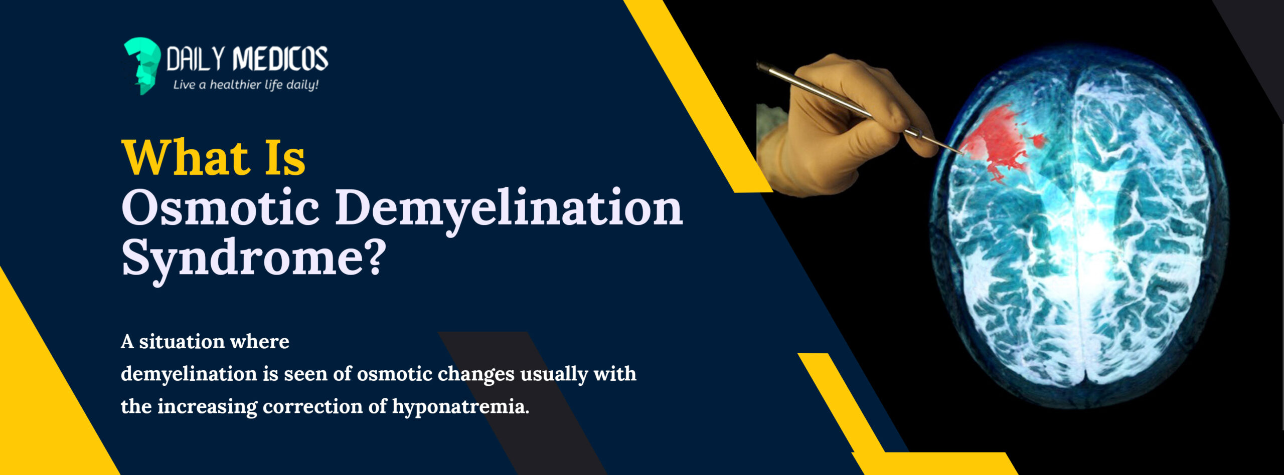 Osmotic Demyelination Syndrome: All You Need To Know 1 - Daily Medicos