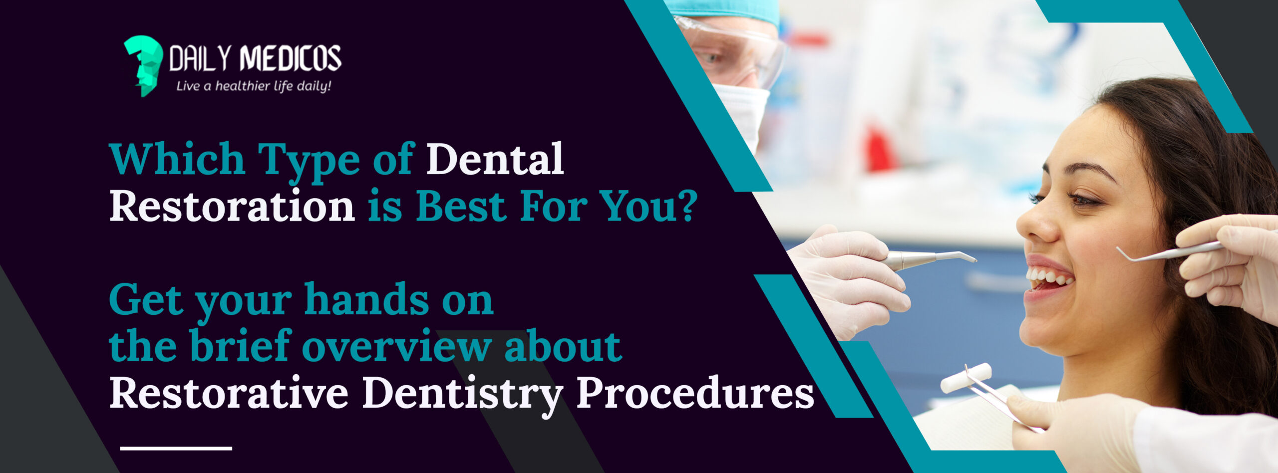 Which Type of Dental Restoration is Best For You? The Brief Overview About Restorative Dentistry Procedures 9 - Daily Medicos