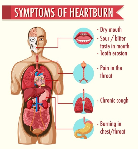 Best 12 Natural Remedies for Heartburn 3 - Daily Medicos